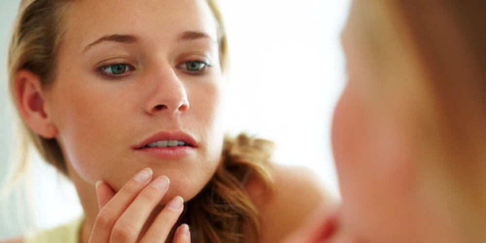 5 Reasons why you have adult acne and ways to fight it