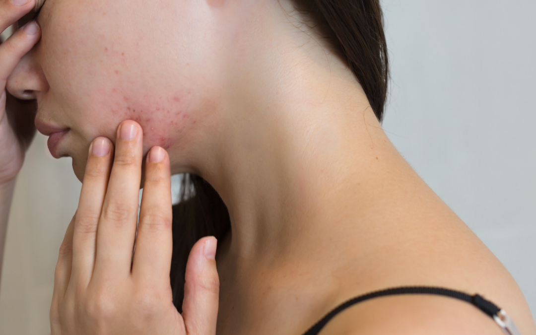 Most Common Hormonal Imbalance Causing Breakouts before your Period