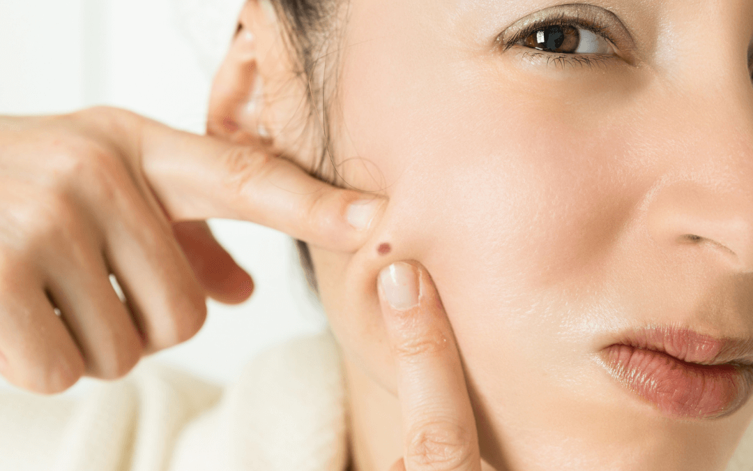 How do you know if you have low skin-calming hormone progesterone?