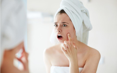 """Featured in Forbes """"What doctors say about acne and what you can do about it"""""""