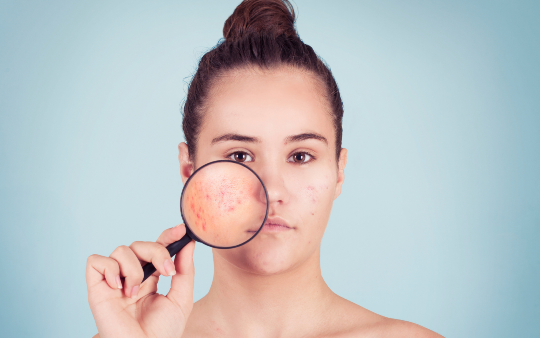 6 Skin Conditions that Look Like Acne But Isn't Acne
